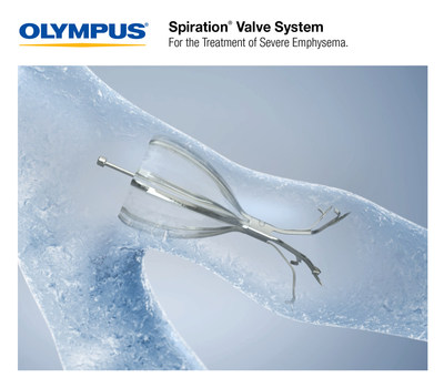 The FDA-approved Olympus Spiration® Valve System is now market available for the therapeutic treatment of severe emphysema. Placed in targeted airways of the lung during a short bronchoscopic procedure, the Spiration Valve is an umbrella shaped device that improves breathing by redirecting air from diseased parts of the lungs to healthier parts, enabling healthier tissue to expand.