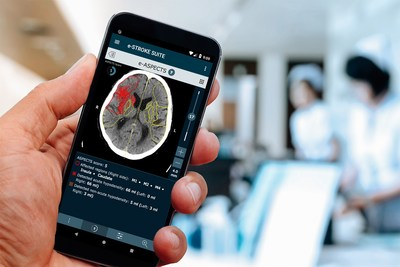 Brainomix's AI-Driven Software Gives Doctors Reliable Information to Treat Stroke Patients (PRNewsfoto/Brainomix)
