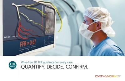 FFRangio - Wire-free 3D FFR guidance for every case.