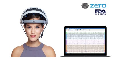 zEEG is a commercially available wireless EEG headset backed by a cloud platform that offers instant upload, tools for analysis and remote interpretation by neurologist.